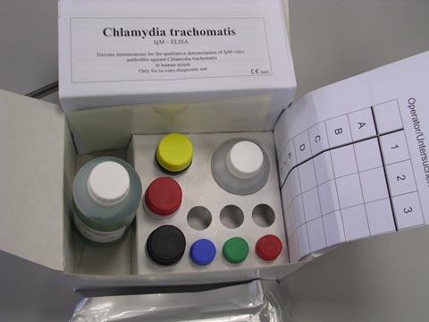 Poradna #05 – NovaLisa® Chlamydia